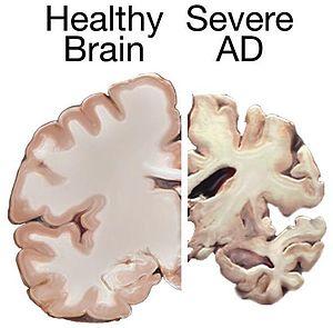 English: A healthy brain compared to a brain s...
