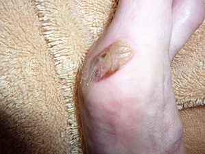 English: Blister on foot three days after trea...