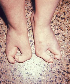A photograph of a child with cleft feet, or &q...