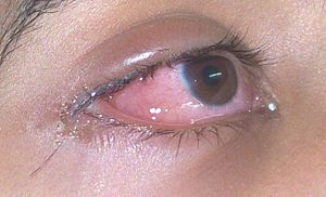 oedema of the conjunctiva due to hay fever allergy