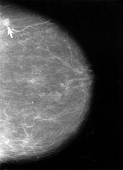 Mammografi visar bröstcancer (pil)
