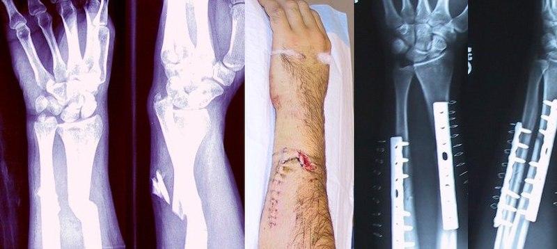 Archivo:Broken fixed arm.jpg