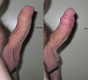 Oral sex on an uncircumcised penis