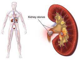 Blausen 0595 KidneyStones