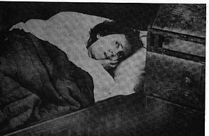 Karolina Olsson, who was in coma between 1876 ...