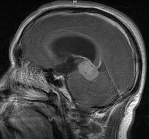 CNS Germinoma, MRI saggital with contrast. Als...