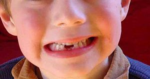 A young boy after losing two baby teeth, exfol...
