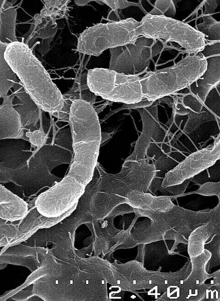 Venenivibrio stagnispumantis gains energy by oxidizing hydrogen gas (wikipedia commons)