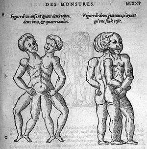 Ambroise Paré (1510?-1590): Les oeuvres d'Ambr...