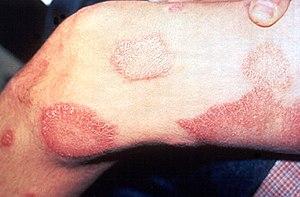 Hansens disease, leprosy.