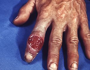 Primary chancre of syphilis on the hand.