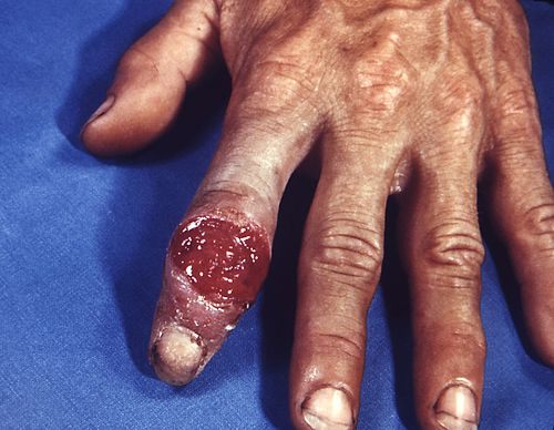 Extragenital syphilitic chancre of the left index finger PHIL 4147 lores