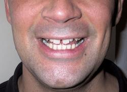 Gap Teeth Jokes Kappit