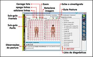 English: Avaliação postural Vida