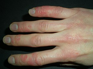 Raynauds with Skin Lesions