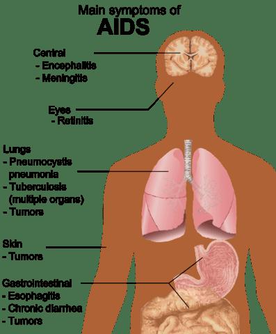 https://i2.wp.com/upload.wikimedia.org/wikipedia/commons/thumb/e/ed/Symptoms_of_AIDS.png/397px-Symptoms_of_AIDS.png