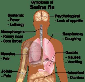 Main symptoms of swine flu. (See Wikipedia:Swi...