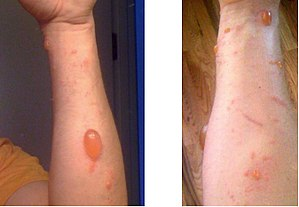 Urushiol-induced contact dermatitis on arms af...