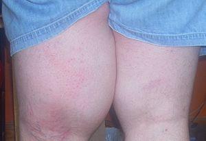 English: Left thigh showing edema caused by li...