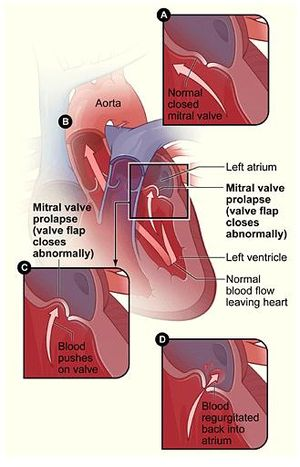 mitral valve repair and replacement leaders in. Black Bedroom Furniture Sets. Home Design Ideas
