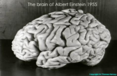 cervello einstein