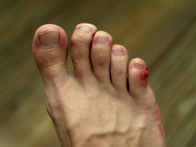 barefoot running stubbed toes