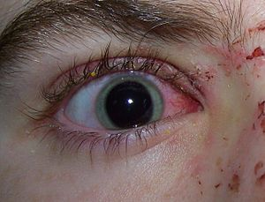 An example of Eye Trauma