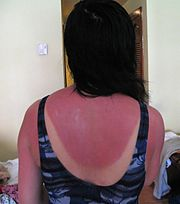 Bad Sunburn
