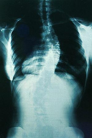 Spine blue