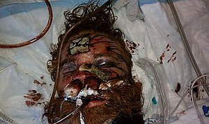 Kelly Thomas, after a fatal beating by officer...