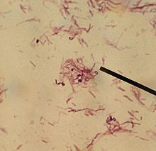 Lactobacillus rhamnosus-LSU lab (Dr. Karen Sullivan).jpg