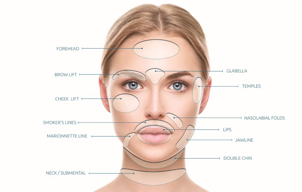 Bayside Natural Medicine and Acupuncture: Botox/Dermal Fillers