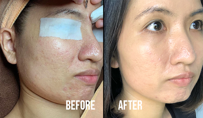 Best Extraction Facial Skin Paradise Before After