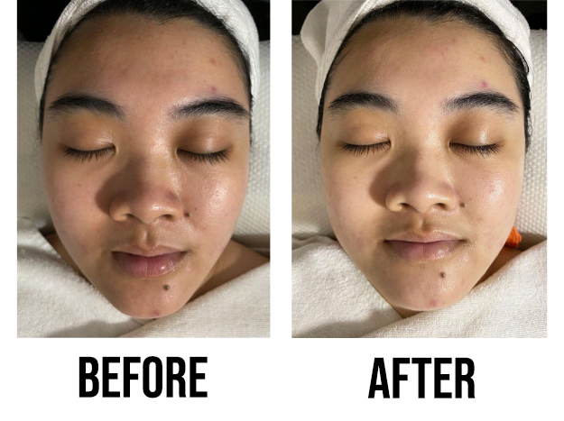 Best Extraction Facial June Skincare Before After