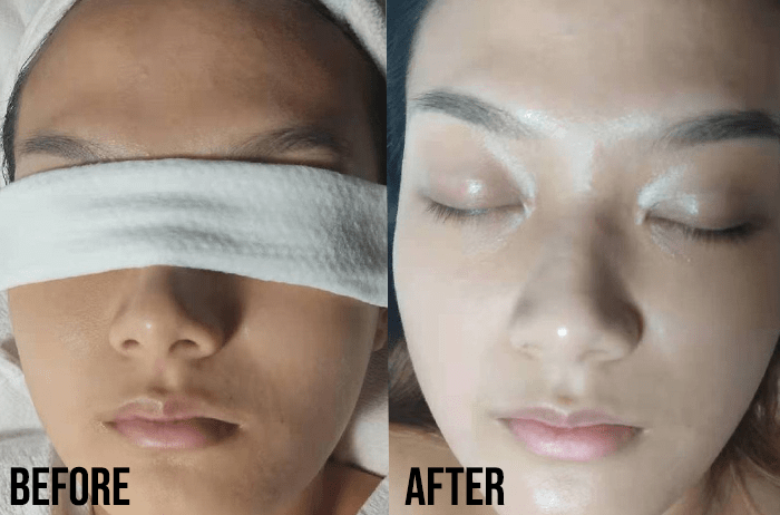 Extraction Facials Citi Beauty Review Before After