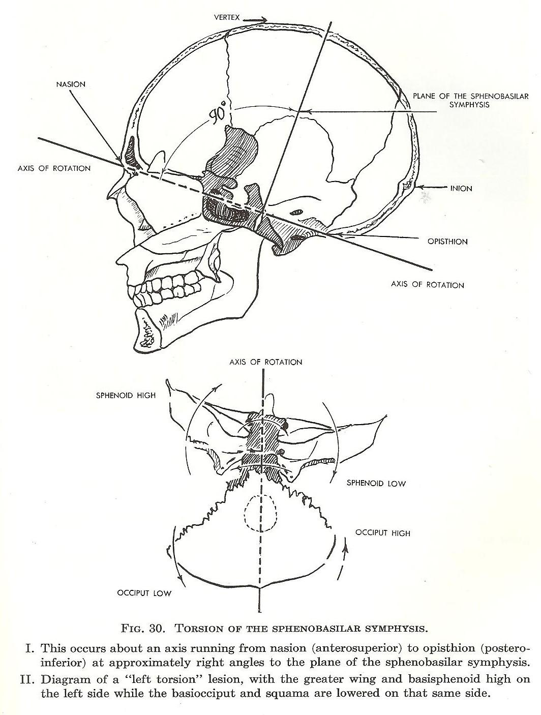 Skull Design And Brainstem Compression