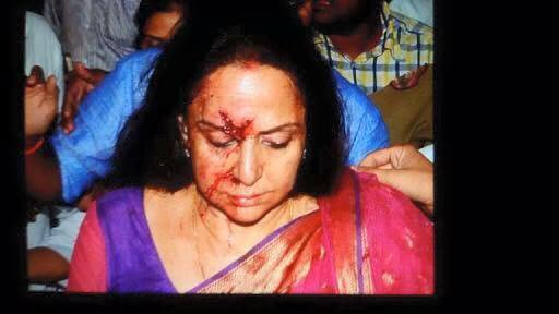 hema malini accident2