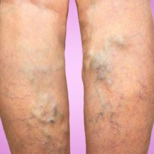 Are Varicose Veins A Matter of Worry?
