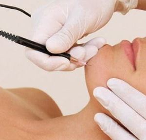 Laser Hair Removal Vs. Electrolysis - Which Is The Right Choice?
