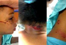 #JusticeForKelis: $12,000 Dollar Police Attack Dog Bit My Baby & I Can't Get Justice!