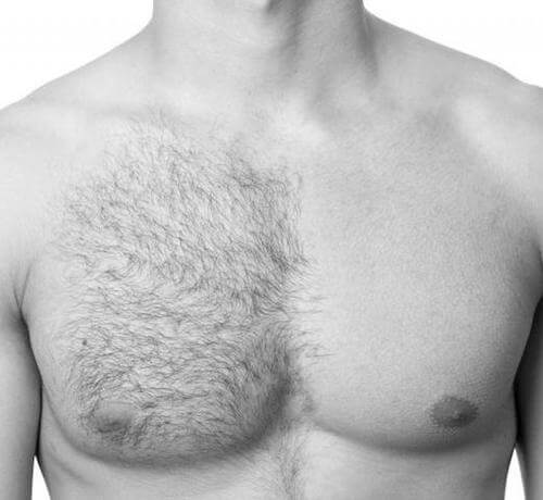 men hair removal Dubai