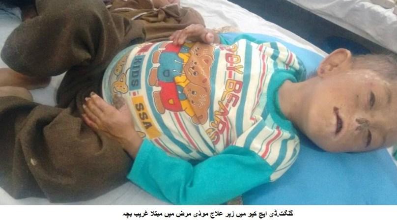 گلگت: موذی مرض میں مبتلا چھے سالہ سلمان کے غریب والدین نے حکومت سےعلاج میں مدد کی اپیل کر دی