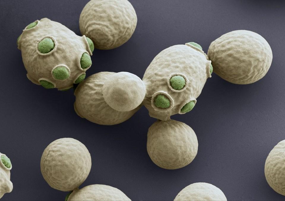 Yeast cells (SEM)