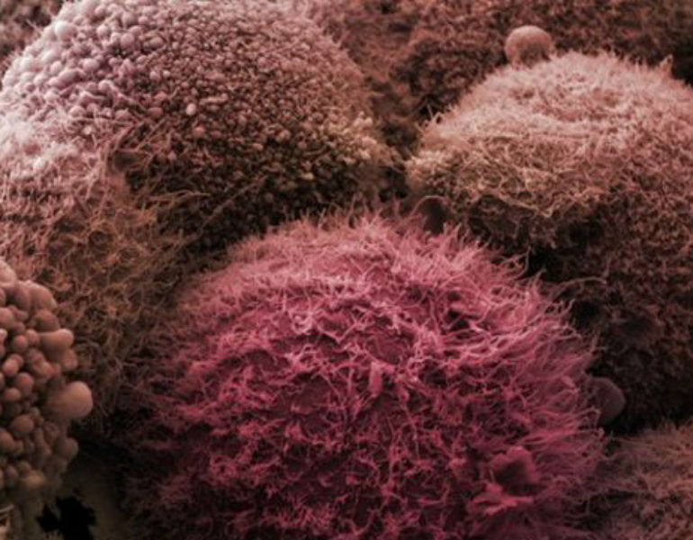 _84610307_pancreatic_cancer_cells-spl
