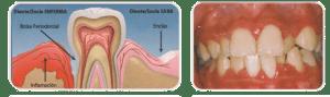 Enfermedad periodontal - Urgencias Dentales Mallorca