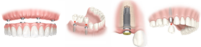 Implantes dentales en Manacor