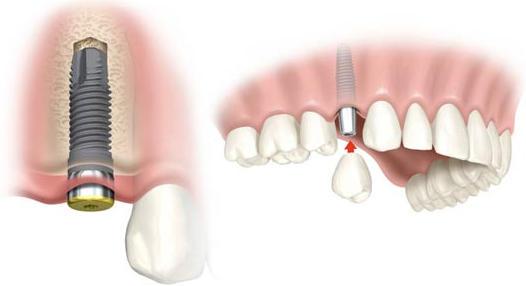 Implantes dentales en el Arenal