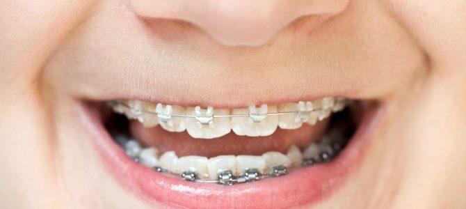 Cuándo empezar con la ortodoncia infantil