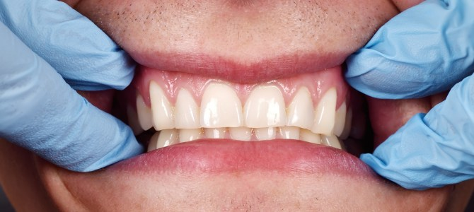 El bruxismo o el problema de apretar los dientes
