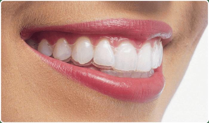Invisalign - Ortodoncia transparente